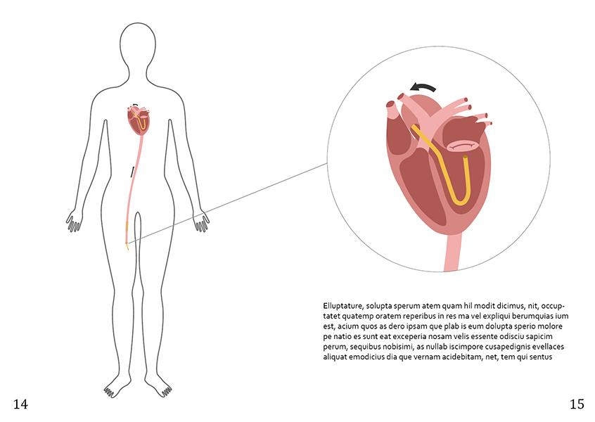 Hartoperatie